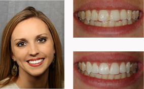 Teeth Bleaching By a Dentist in Lawrenceville GA