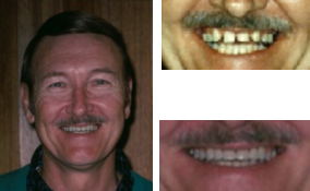 Orthodontics and Bridges By a Dentist in Lawrenceville GA