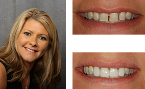 Porcelain Veneers Done By a Lawrenceville Dentist