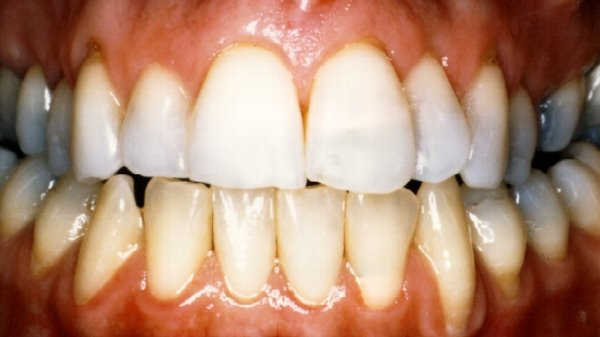Closeup of After Teeth Bleaching