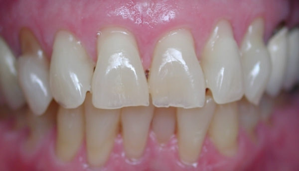 Tooth Erosion Dental Crowns Lawrenceville Cosmetic