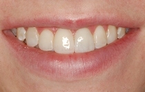 Bonding to Cover Discolored Teeth - After