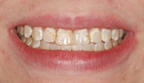 Bonding to Cover Discolored Teeth - Before