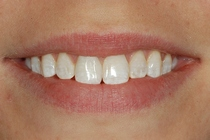 Porcelain Crown Covers a Discolored Tooth - After