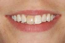 Porcelain Crown Covers a Discolored Tooth - Before