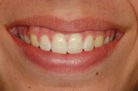 Orthodontics For Bad Overbites - After