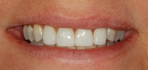Porcelain Laminates To Close Spaces Between The Front Teeth - After