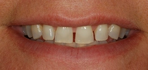 Porcelain Laminates To Close Spaces Between The Front Teeth - Before