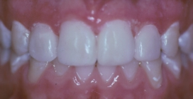Bonding To Widen Small Teeth And To Close Gaps - After