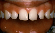 Bonding To Widen Small Teeth And To Close Gaps - Before