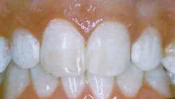 Bonding To Cover Discolorations - After