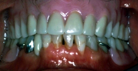 Replacement Of Missing Teeth With Complete Dentures - After