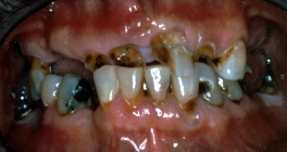 Replacement Of Missing Teeth With Complete Dentures - Before