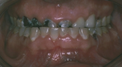 Comprehensive Dentistry - Before