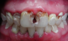 Restoring A Smile - Before