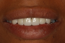 Severe Erosion Corrected With Crowns And Porcelain Laminate Veneers - After