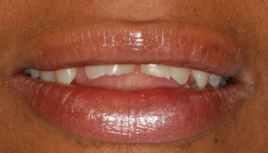 Severe Erosion Corrected With Crowns And Porcelain Laminate Veneers - Before