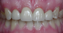 Severe Erosion Corrected With Crowns - After