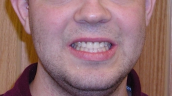 Severe Erosion Corrected With Crowns - After Portrait