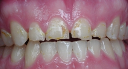 Severe Erosion Corrected With Crowns - Before