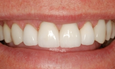 Severe Tooth Wear Corrected With Crowns - After
