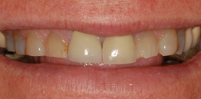 Severe Tooth Wear Corrected With Crowns - Before