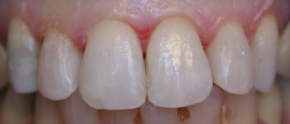 Changing Out Old Discolored Fillings - After
