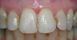 Changing Out Old Discolored Fillings - Before