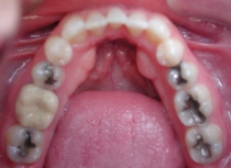Invisalign - Invisible Braces - After