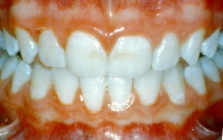 Orthodontics For Crowded Teeth Without Braces Five Years Later - After