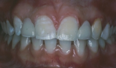 Orthodontics For Congenitally Missing Teeth - After