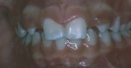 Orthodontics For Congenitally Missing Teeth - Before