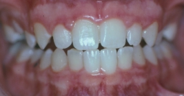 Orthodontics For Bad Overbites Without Braces - After