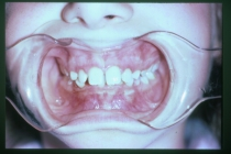 Orthodontics For Bad Overbites Without Braces - Before