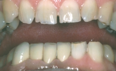 Orthodontics To Create Space To Restore Severely Worn Teeth - After Portrait