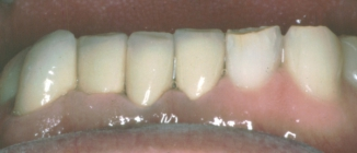 Orthodontics To Create Space To Restore Severely Worn Teeth - After