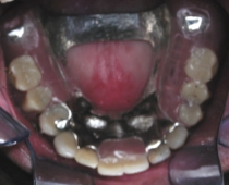 Replacement Of Missing Teeth With Partial Dentures - After