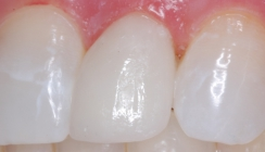 Peg Lateral Corrected With Porcelain Laminates - After