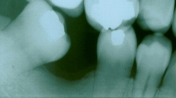 Upright A Severely Tilted Molar And Replace With A Fixed Bridge - Before