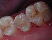 Tooth Colored Fillings In Back Teeth - After