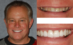 Porcelain Crowns Done By a Lawrenceville Dentist